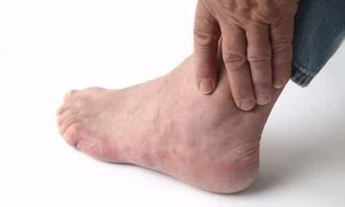 Боли в голеностопном суставе причины лечение