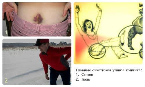 Наиболее частая причина возникновения боли – это банальная травма, например, удар ягодицами о твердую поверхность