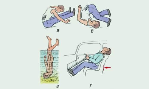 Причины дорсалгии, которая локализуется в спине, охватывая реберное пространство с обеих сторон, - травмы позвоночника