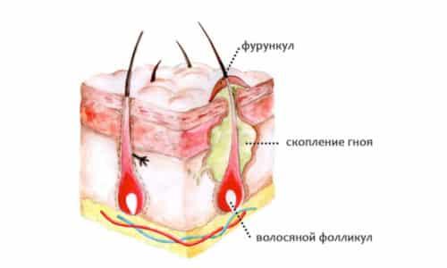 Проявление боли в копчиковой области или тем более фурункула (чирья) вызывает массу неудобств, поэтому не следует медлить с решением такой проблемы и надо сразу же обратиться к врачу для начала лечения