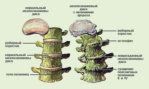Унковертебральный остеоартроз шейного отдела позвоночника