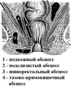 Абсцессы (парапроктиты) прямой кишки