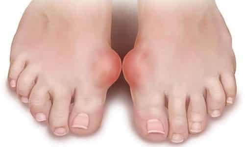 Проблема артрита большого пальца ноги