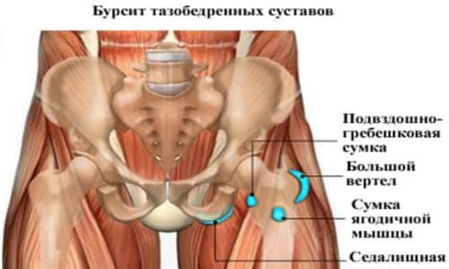 Довольно часто болевые ощущения в крестцово-подвздошном суставе принимают за бурсит тазобедренного сустава