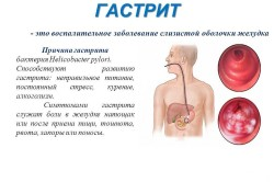 Гастрит - причина боли живота под ребрами справа