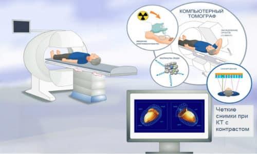 Компьютерная томография отличается тем, что излучение фиксирует специальный датчик
