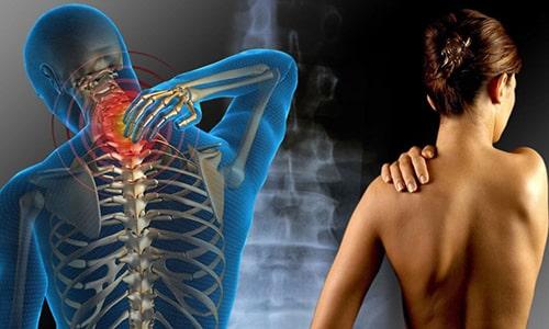 Причины возникновения мышечных болей фото