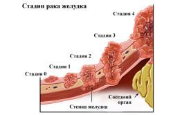 Рак желудка - одна из причин рвоты кофейной гущей