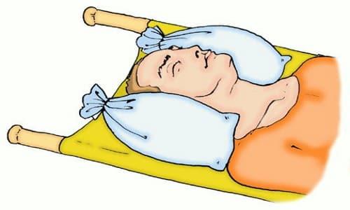 Классификация повреждений позвоночника
