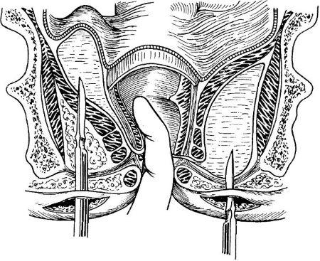 Вскрытие ишиоректального и тазово-прямокишечного парапроктита