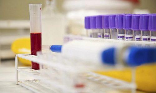Эластазный тест основан на антителах, образующихся в сыворотке крови