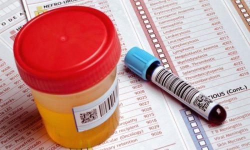 Диагноз ставится на основании лабораторных и инструментальных анализов органов пищеварения