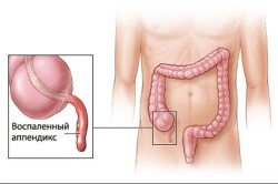 Аппендицит - причина боли живота под ребрами справа
