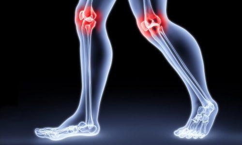 При панкреатите происходит вымывание кальция и других минералов, что ведет к развитию артритов