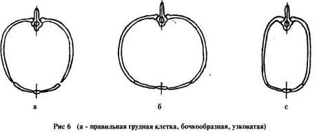 Бочкообразная форма