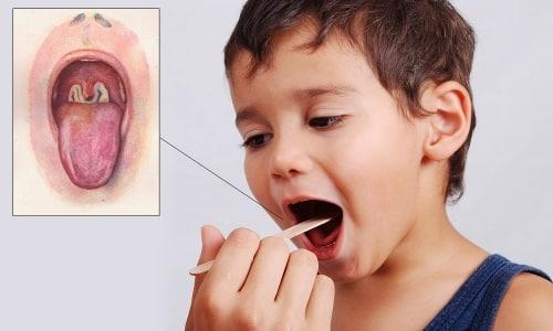 Прививка АКДС против дифтерии