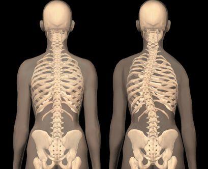 диспластический сколиоз характеризуется образованием реберного горба