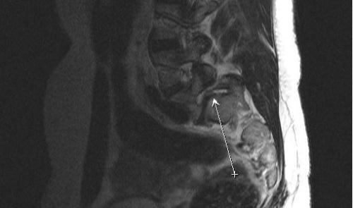 Симптомы заднего диффузного выпячивания межпозвонкового диска фото