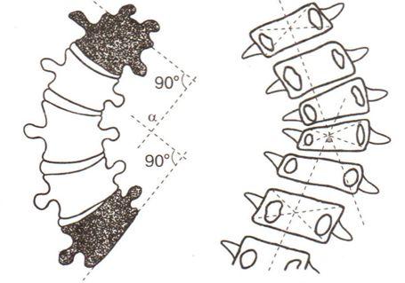фиксированный сколиоз характеризуется скручиванием позвонков и их деформацией