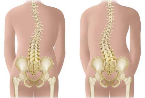 грудопоясничный сколиоз - это фронтальная деформация позвоночника в грудном и поясничном отделах