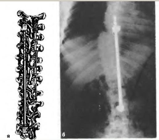 Виды операциий на позвоночнике при сколиозе
