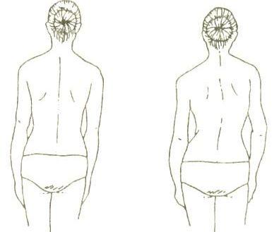 причины развития идиопатического сколиоза неизвестны