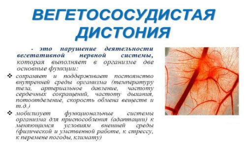 Вегето-сосудистая дистония - это расстройство вегетативной нервной системы (ВНС)