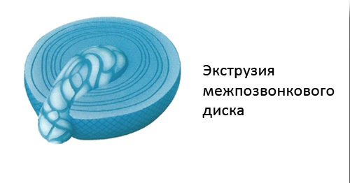 ЭкстрУЗИя межпозвонкового диска