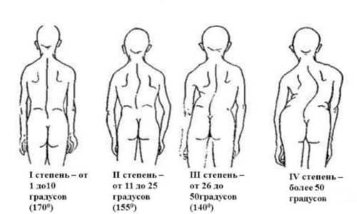 При анализе рентгенологического снимка спины в прямой проекции врач-рентгенолог определяет степень кривизны позвоночника