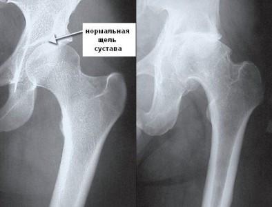 Методы диагностики коксартроза фото