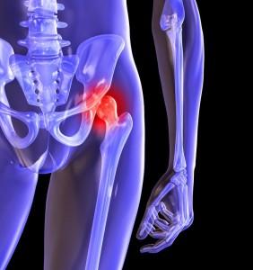 Причины болей в тазобедренном сустав