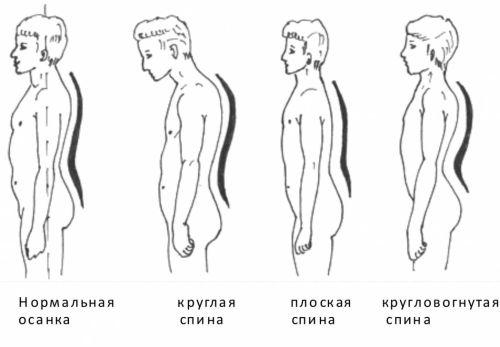 кругловогнутая спина характеризуется увеличением всех физиологических изгибов позвоночника