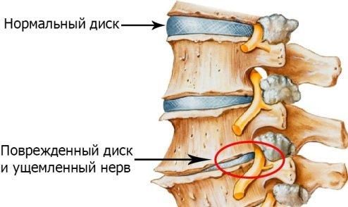 Расположение и симптомы межпозвоночной грыжи