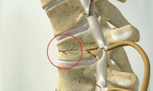 Какие бывают травмы позвоночного столба? фото