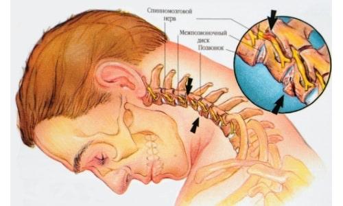 Виды дорсопатии