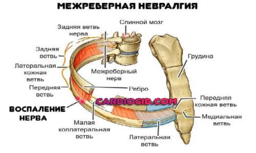 Обострение при глубоких вдохах и резких движениях диафрагмы (смехе, кашле) наблюдается при межреберной невралгии