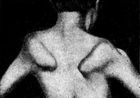 миопатия ЛандУЗИ дежерина