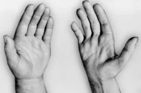Клинические симптомы миопатии