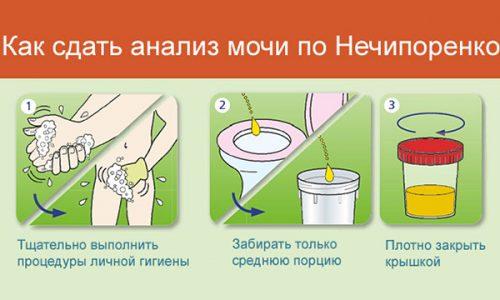 Анализ мочи по Нечипоренко назначается при сопутствующих панкреатиту болезнях почек и мочевыводящих путей