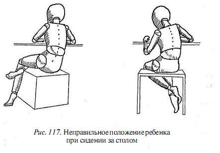 Основные виды деформаций спины фото