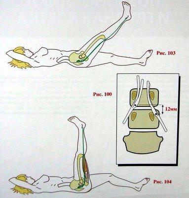 оценка наличия симптома Ласега