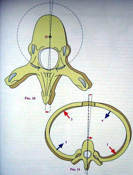 Классификация поворотапозвонков