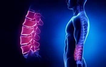 Боль на фоне остеохондроза