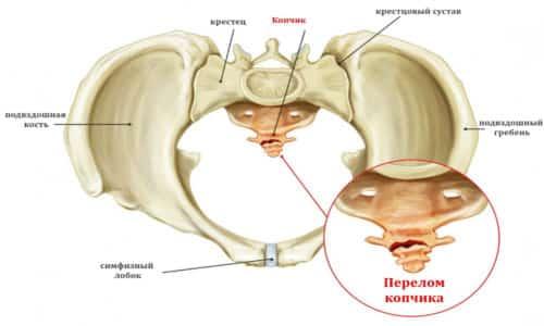 Закрытые переломы копчика без смещения отломков – нарушение целостности костного сегмента (позвонка) без смещения и повреждения кожных покровов