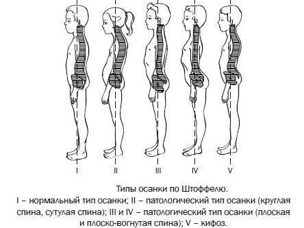 плоская спина и другие типы осанки