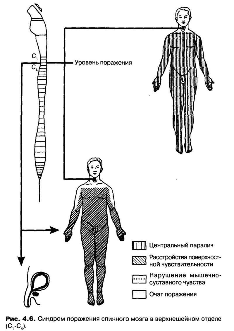 синдром поражения спинного мозга в верхнешейном отделе позвоночника