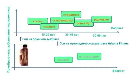 Комплекс преимуществ матрасов Аскона