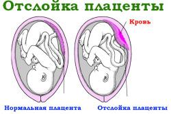 Преждевременная отслойка плаценты - причина болей внизу живота