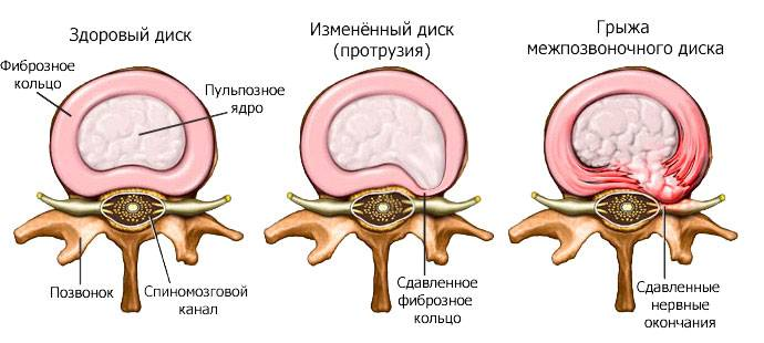 Причины, вызывающие боль в спине