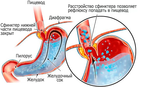 Схема гастроэзофагеальной рефлюксной болезни